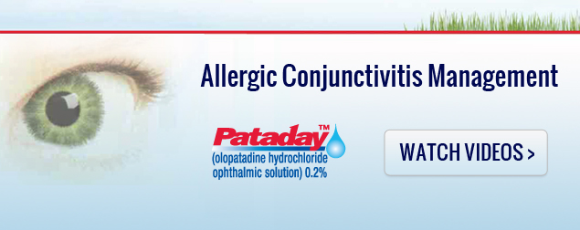 Allergic Conjunctivitis Management